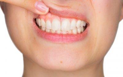 ¿Por qué cuidar tus encías? Consejos sobre salud gingival