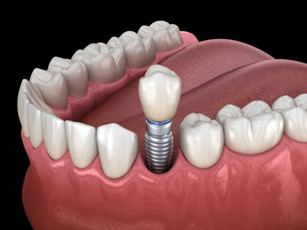qué es una prótesis dental