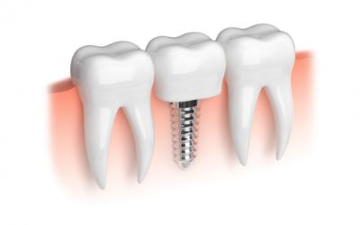 Implantes dentales, ¿para qué sirven y qué ventajas tienen?